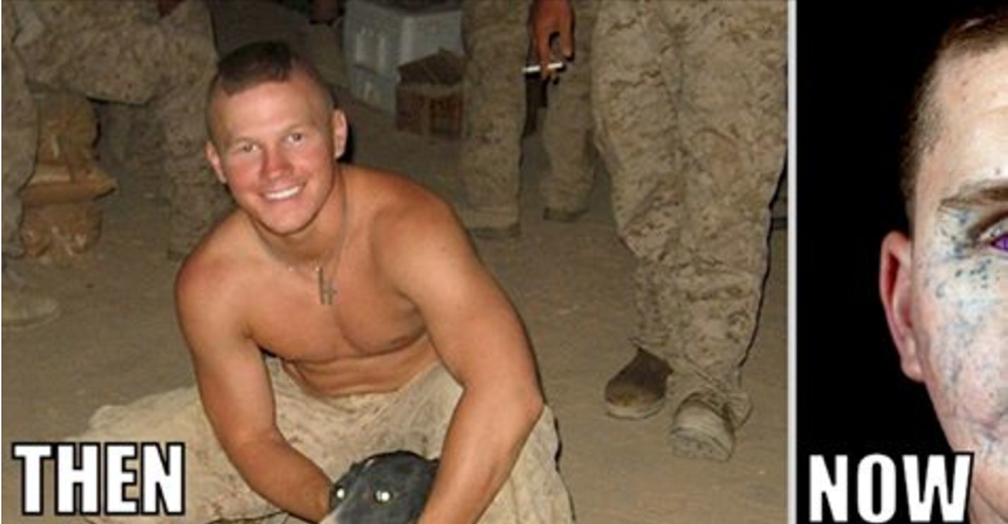 This Man Jumped On A Live Enemy Grenade To Save His Fellow Marines And Lived To Tell The Tale
