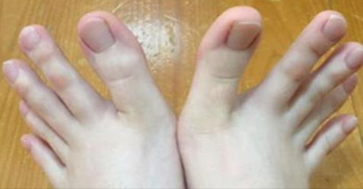 People Can't Get Over This Woman's Feet, And When You See Them You Won't Be Able To Either