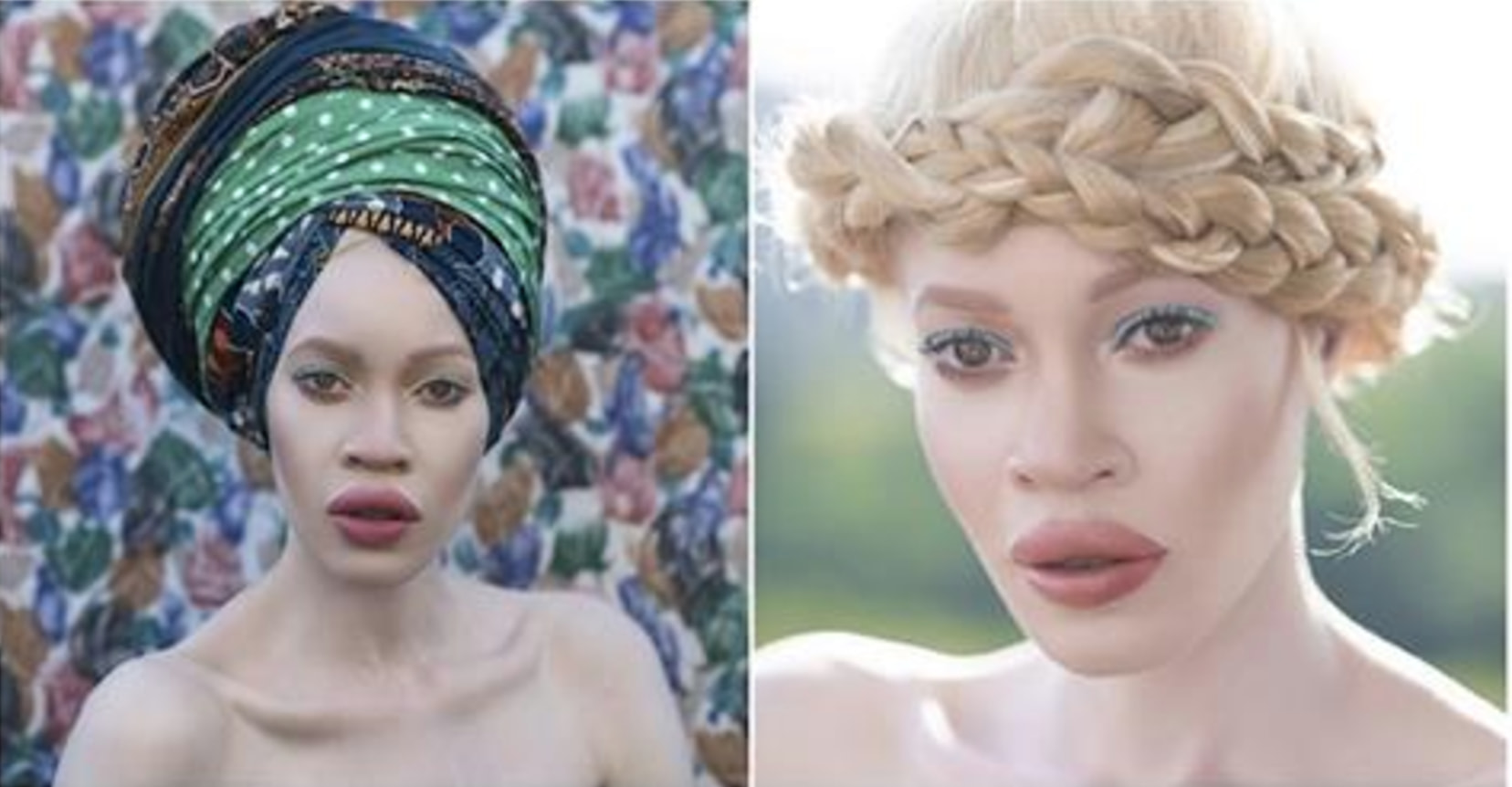This Beautiful Albino Woman Is Taking The Modeling World By Storm