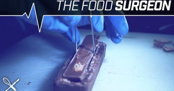 The Food Surgeon: Spinal KitKat Implantation in a 3 Musketeers