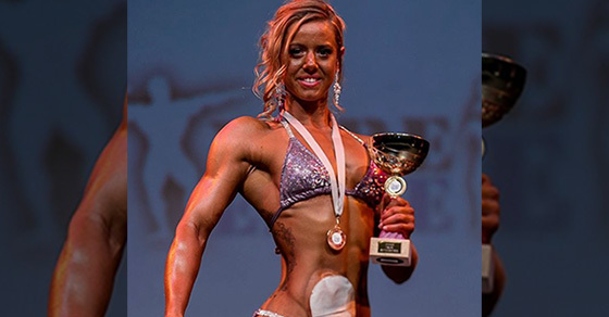 This Ulcerative Colitis Survivor Won A Female Bodybuilders