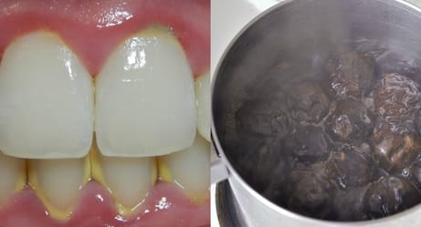 You Can Remove Tartar From Your Teeth With One Simple Ingredient