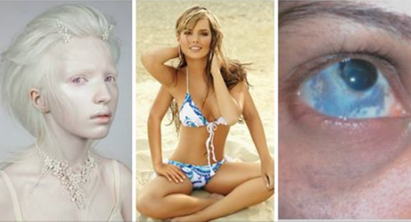 These Incredibly Rare Medical Conditions Will Bewilder And Fascinate You