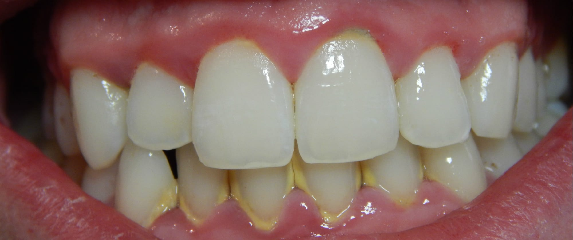Image result for tartar teeth images