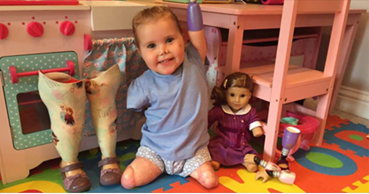 This Girl Survived A Quadruple Amputation, And Now She Has A Doll That Looks Just Like Her